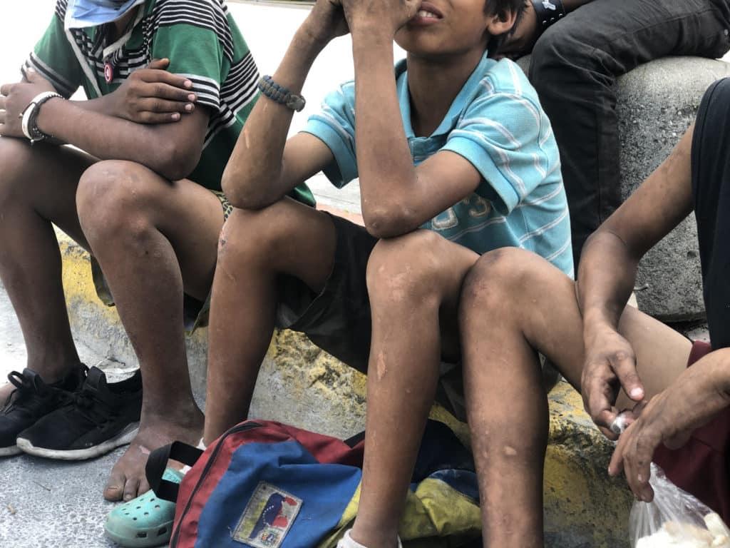 La pandemia empeoró la situación alimentaria de miles de niños en Venezuela.
